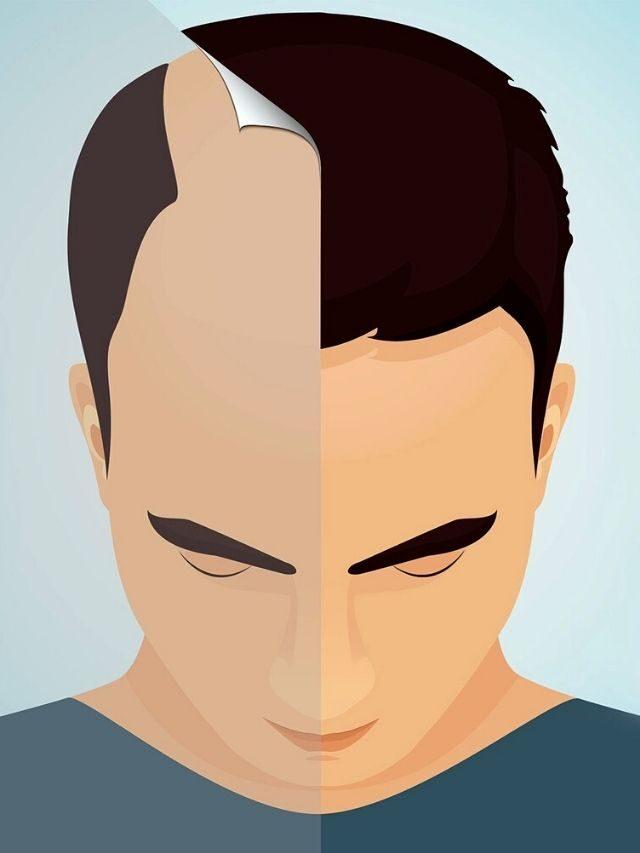 Como é o transplante de cabelo?