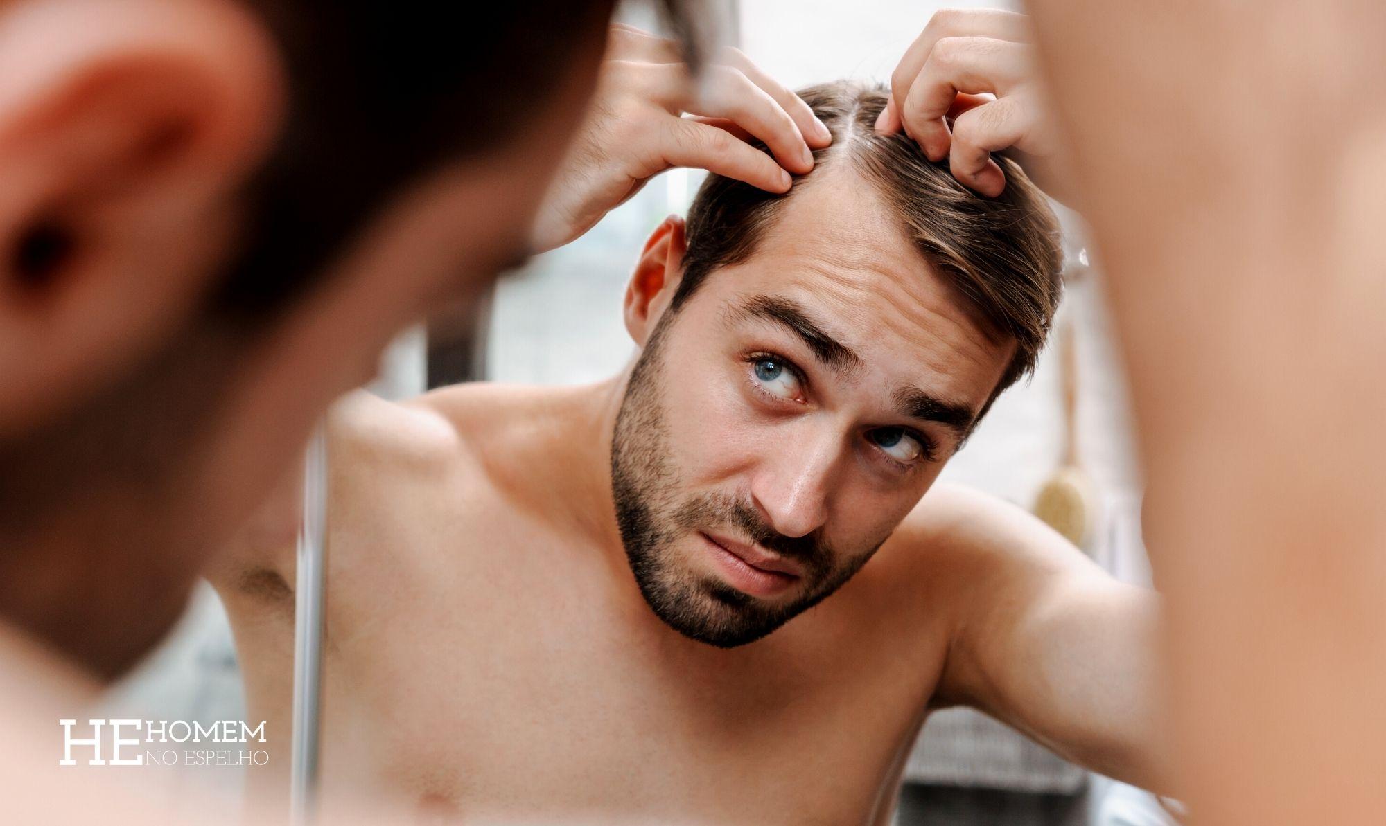 Homem No Espelho - Calvície hereditária tratamento